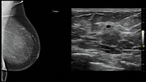Breast Ultrasound Screening