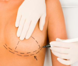 Oncoplastic Breast Surgery
