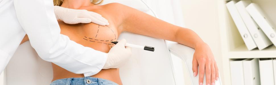 جراحة أورام الثدي التجميلية